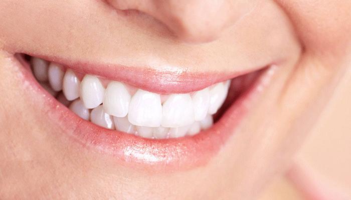 Implantes dentales Corachán