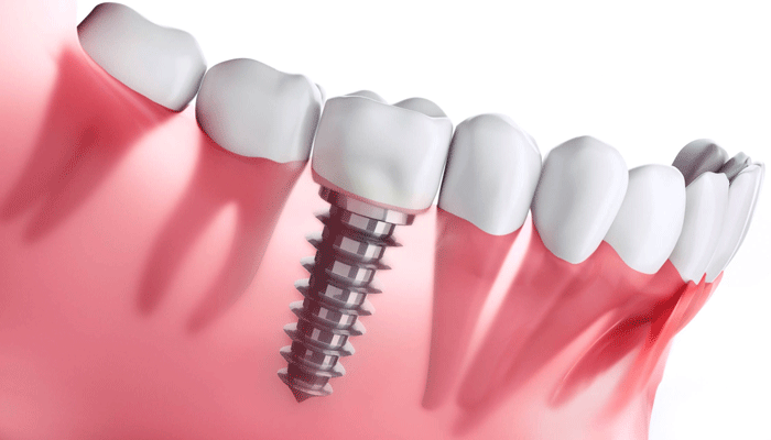 Implantes dentales de titanio
