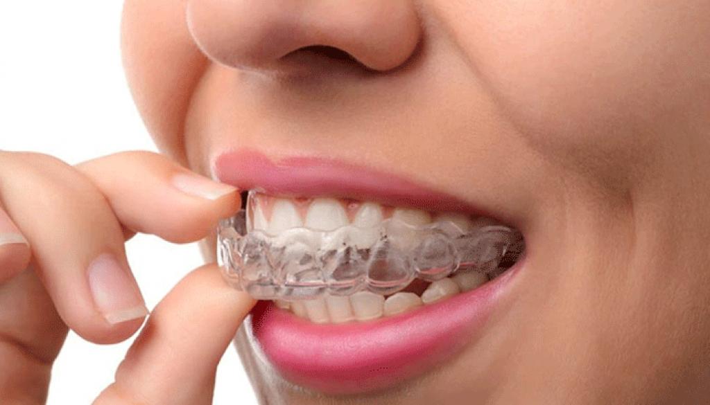 Ortodoncia Invisible Clinica Corachan
